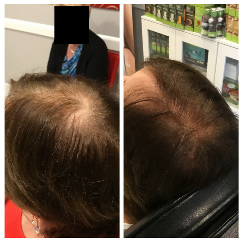 PRP for Hair Loss Before & After