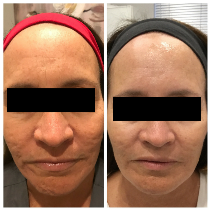 Micro-Needling Before & After