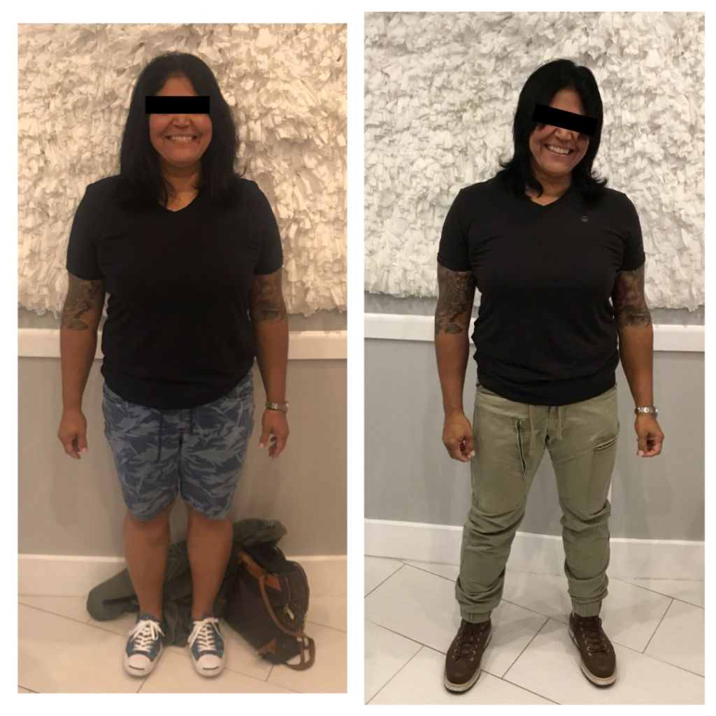 Weight Loss Before & After
